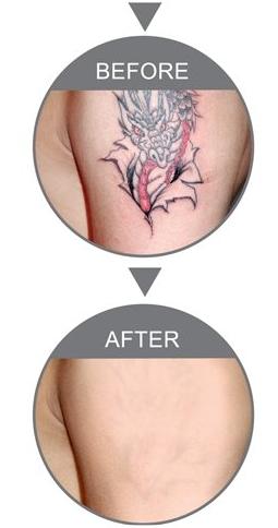 南京纹身店:洗纹身